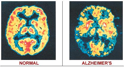 Nowe dowody sugerują, że choroba Alzheimera nie niszczy wspomnień, a jedynie je blokuje