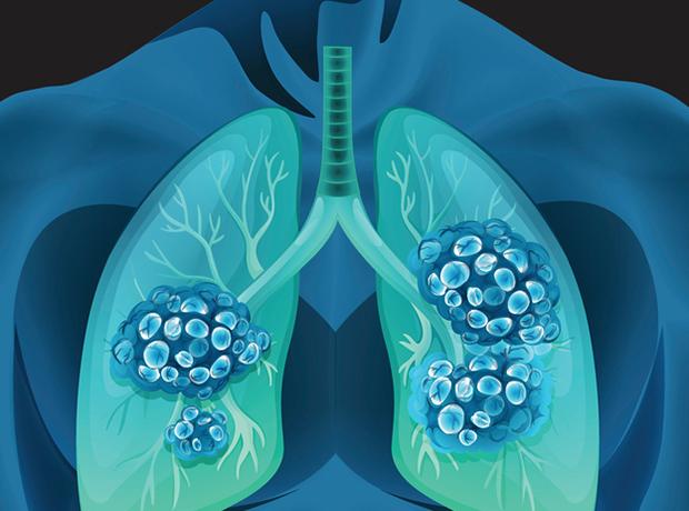 W nowotworze płuc natrafiono na miniaturowy układ trawienny. Naukowcy są wstrząśnięci odkryciem