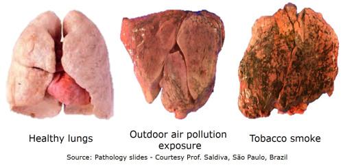 Rocznie umiera 4,5 miliona osób przez choroby związane z zanieczyszczeniami powietrza