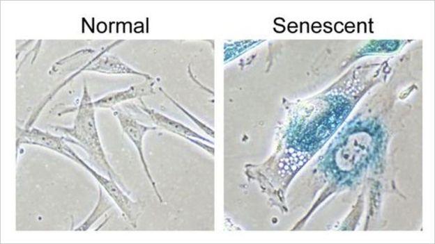 Naukowcy z powodzeniem odwrócili procesy starzenia na sztucznie wyhodowanych ludzkich komórkach