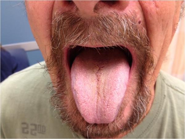 Czarny język włochaty to dolegliwość, której nabawiła się jedna z pacjentek po zażyciu antybiotyków