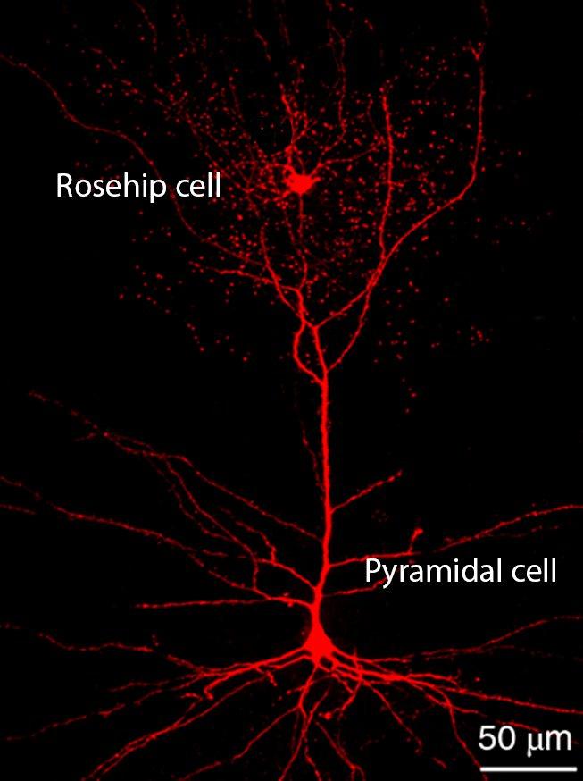 Odkryto nowy typ komórek mózgowych i wygląda na to, że są unikalne, bo występują tylko u ludzi