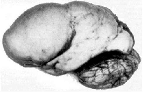 Najdziwniejsze i najciekawsze przypadki ludzkiego mózgu. Plastyczność tego narządu wciąż zaskakuje