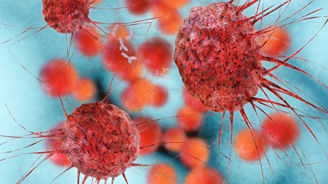 Opracowano żel zabijający pozostałości komórek rakowych po operacyjnym leczeniu raka