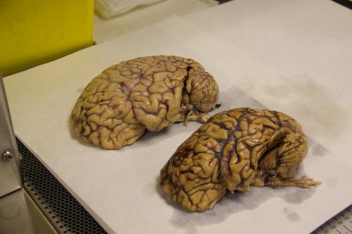 Dziwaczne badanie sugeruje, że istnieje pewna zależność między twoim brzuchem a rozmiarem mózgu