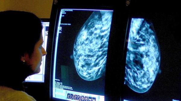 Szwajcarski zespół z powodzeniem zamienił ludzkie komórki raka piersi w komórki tłuszczowe