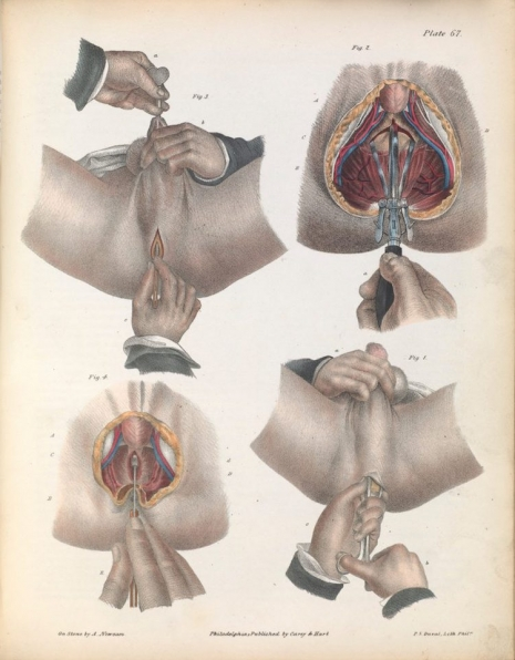 Kilka makabrycznych ilustracji z XIX-wiecznego podręcznika medycyny. Nie dla ludzi o słabych nerwach