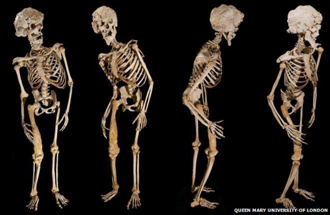 Po 130 latach odnaleziono szczątki Człowieka Słonia. Mogą pomóc wyjaśnić osobliwą deformację