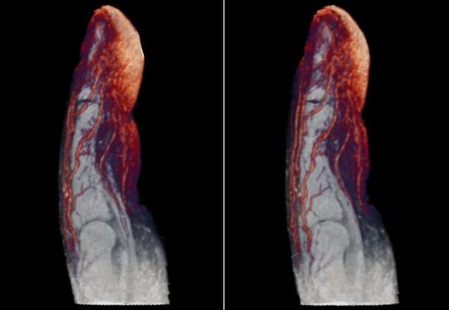 Zdjęcia rentgenowskie, które nauczą cię więcej o ludzkim ciele niż podręczniki do biologii