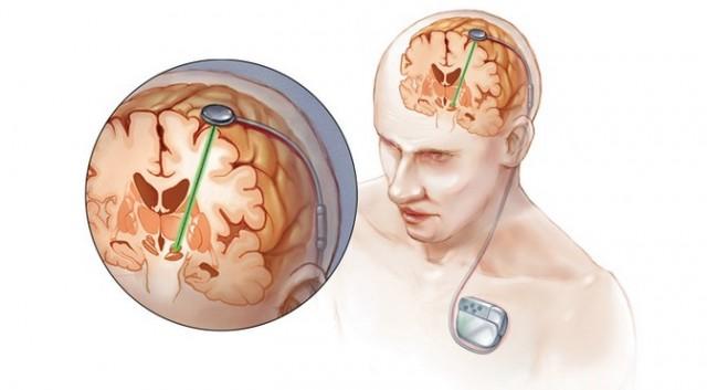 implant mózgu