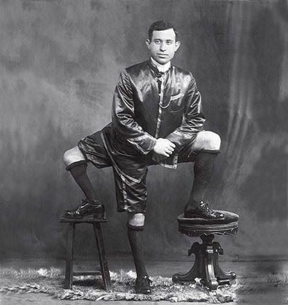 Trójnogi Mężczyzna, Frank Lentini, który mimo swojej osobliwości wiódł szczęśliwe życie