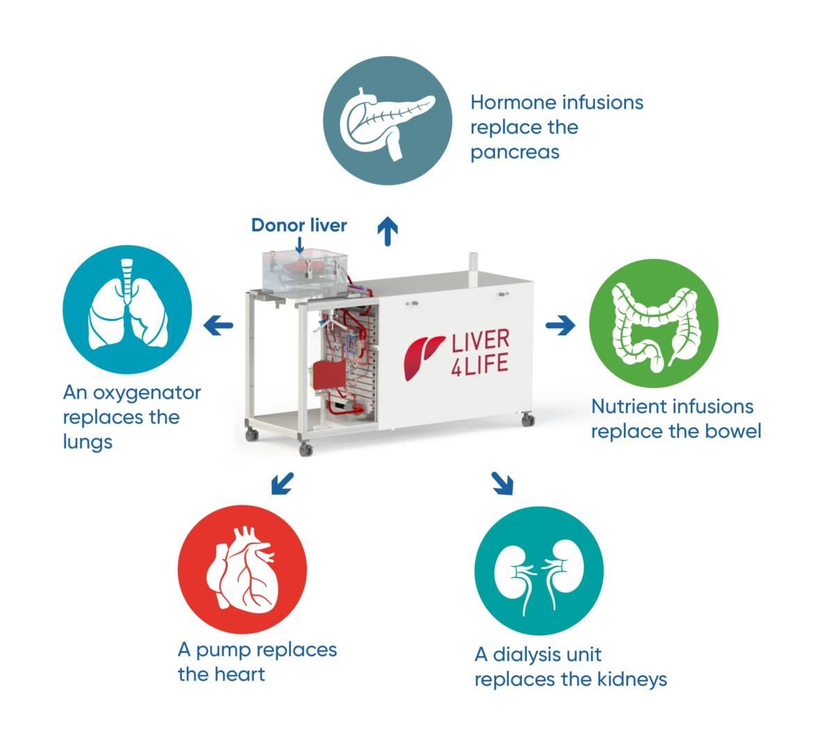 Naukowcy opracowali maszynę, która jest w stanie utrzymać wątrobę poza ciałem przez 7 dni