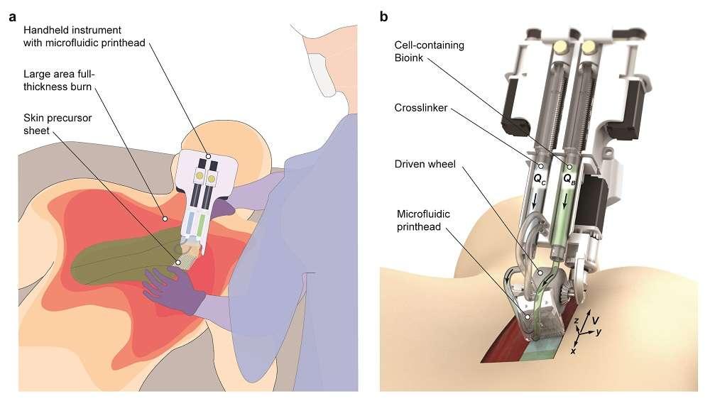 """Zespół opracował ręczną biodrukarkę 3D, która jest w stanie """"drukować"""" komórki skóry na ranach"""