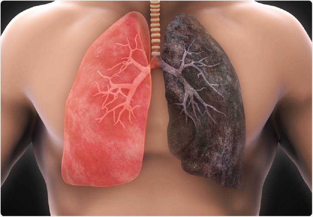 Nigdy nie jest za późno na rzucenie palenia! Potwierdza to przeprowadzone badanie