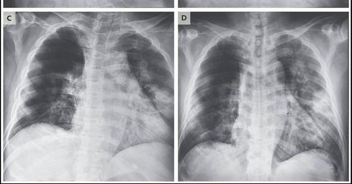 Skany tomografii komputerowej ujawniają, jak COVID-19 atakuje płuca zainfekowanych