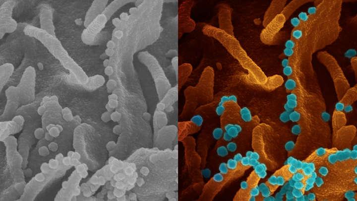 Naukowcy odkryli przeciwciało, które powstrzymuje koronawirusa przed infekowaniem komórek