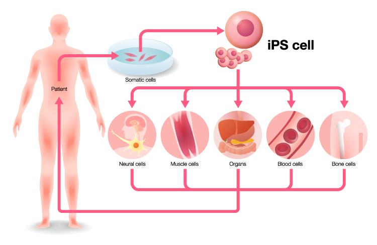indukowane pluripotencjalne komórki macierzyste