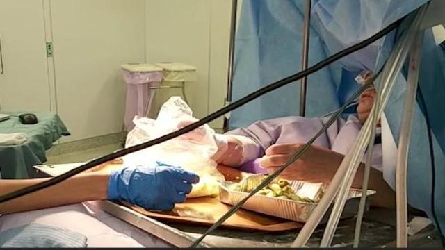 Włoszka przygotowała 90 nadziewanych oliwek podczas zabiegu wykonywanym na otwartej czaszce