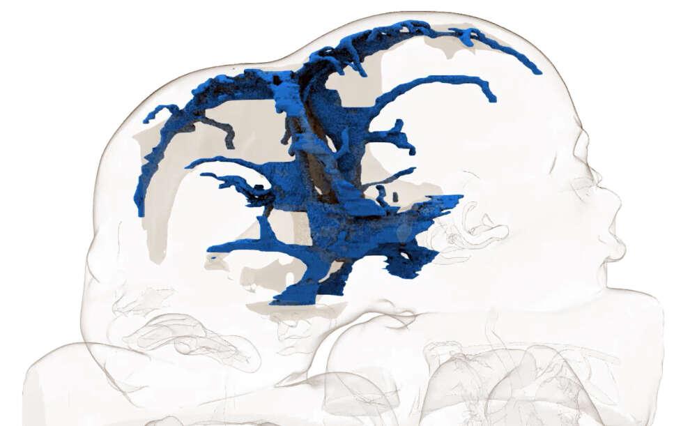 Bliźniaczki syjamskie połączone czaszkami zostały rozdzielone podczas 18-godzinnej operacji