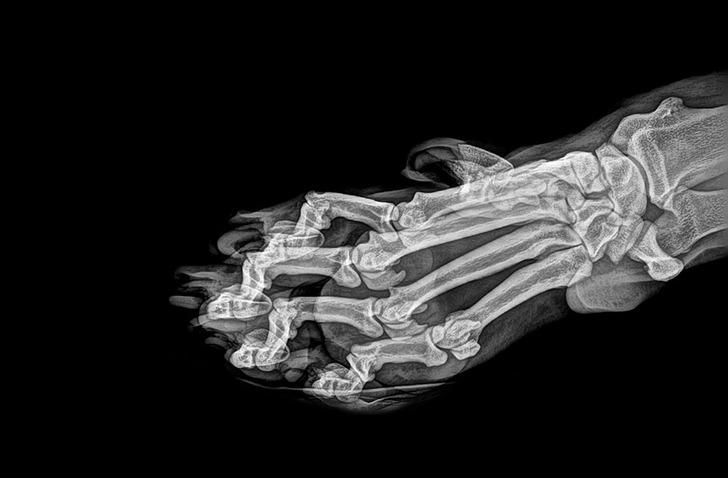 Kilka ciekawych zdjęć rentgenowskich, które ukazują ukryte aspekty naszego codziennego życia