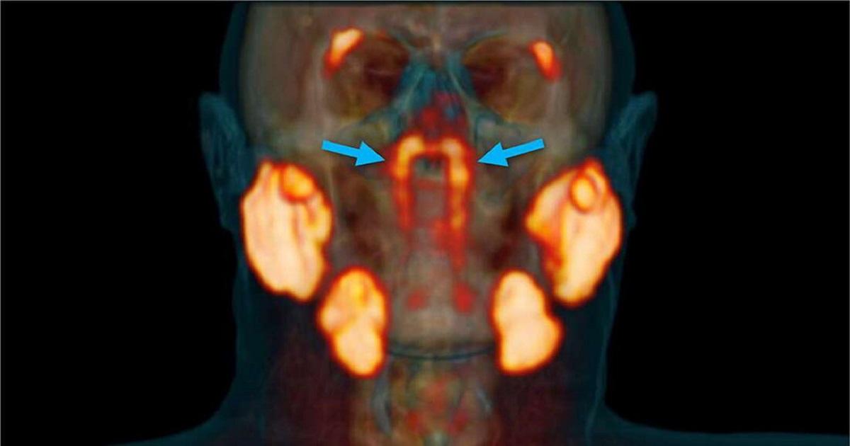 Zespół onkologów zupełnie przypadkiem odkrył nowy organ w ludzkim ciele