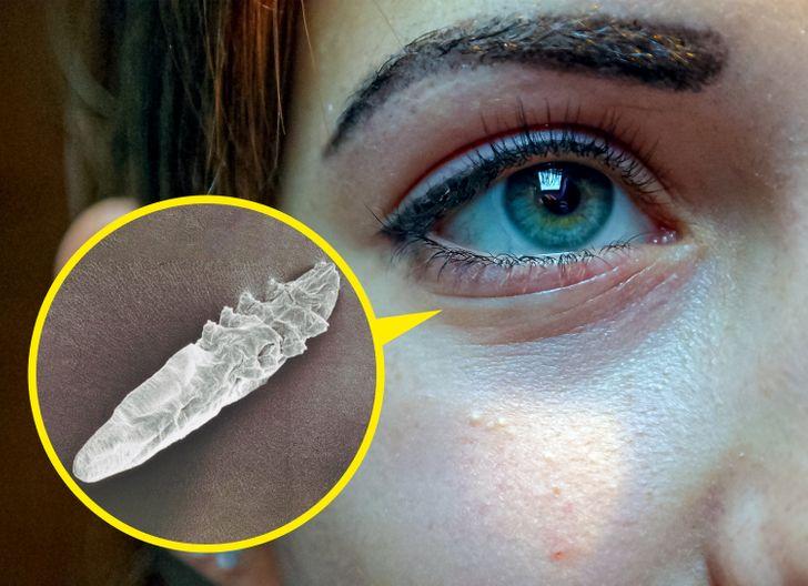 Każdej nocy miliony mikroskopijnych organizmów organizuje wielką ucztę na twojej twarzy