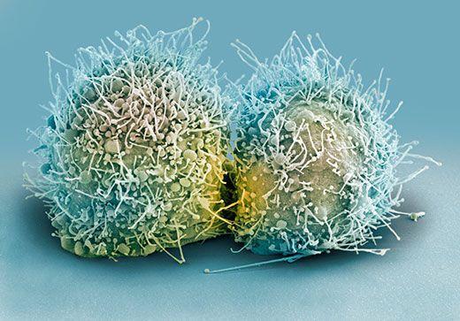 Dziwna historia Henrietty Lacks i jej nieśmiertelnych komórek, które odmieniły oblicze medycyny