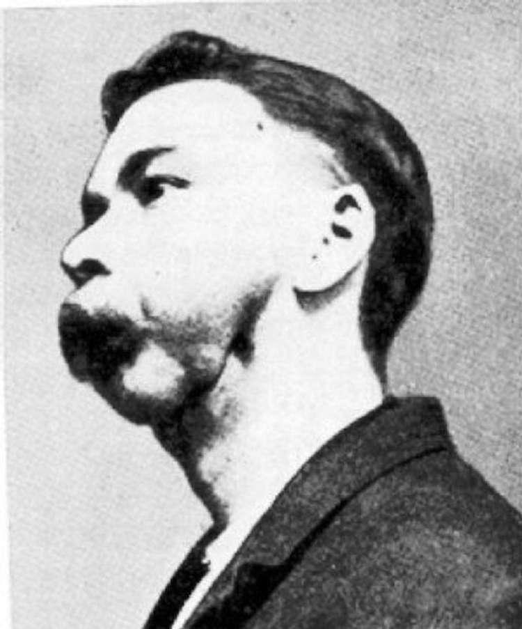Historia mężczyzny, który spożywał radioaktywny napój. W końcu wszystkie jego kości się rozpadły