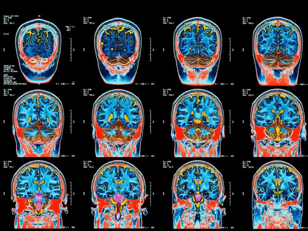 Tajemnicza choroba mózgu o nieznanym pochodzeniu atakuje dziesiątki ludzi w Kanadzie