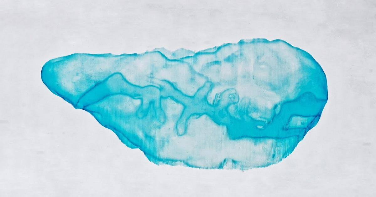 Drukowane biologicznie mini trzustki 3D mogą pomóc w walce z cukrzycą. To przełomowa metoda