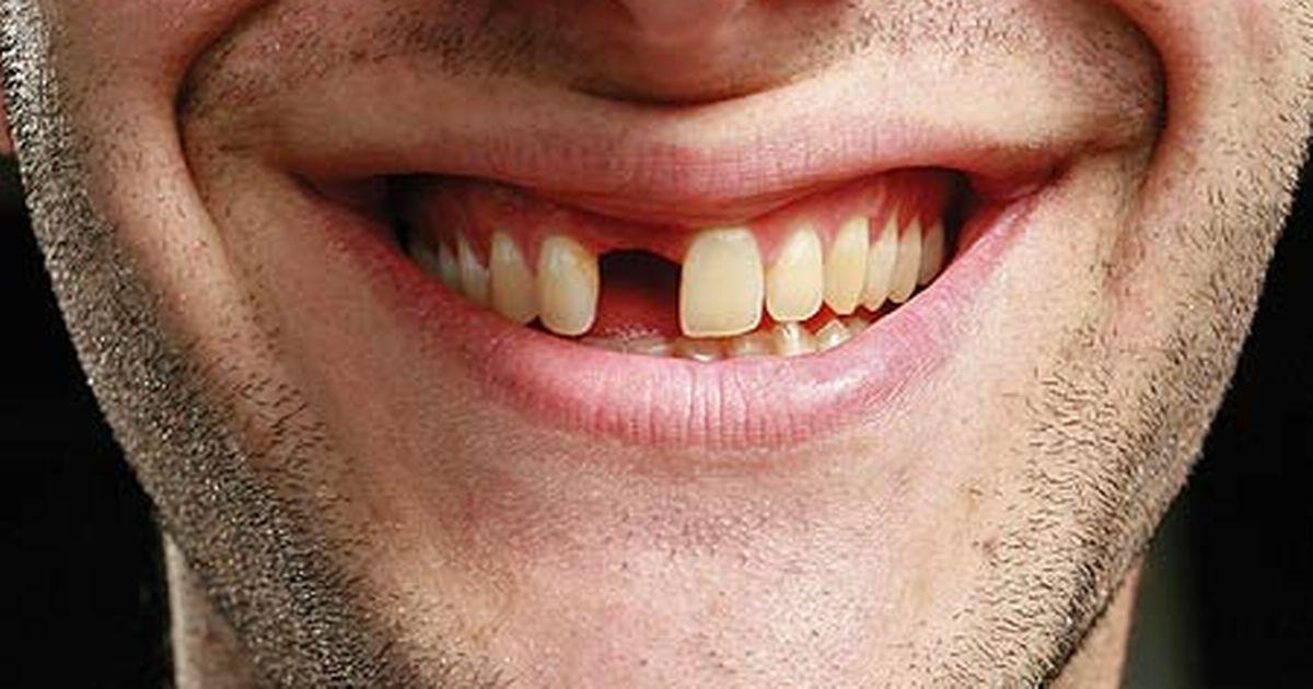 Zespół naukowców znalazł sposób na to, by ludziom mogły odrastać zęby
