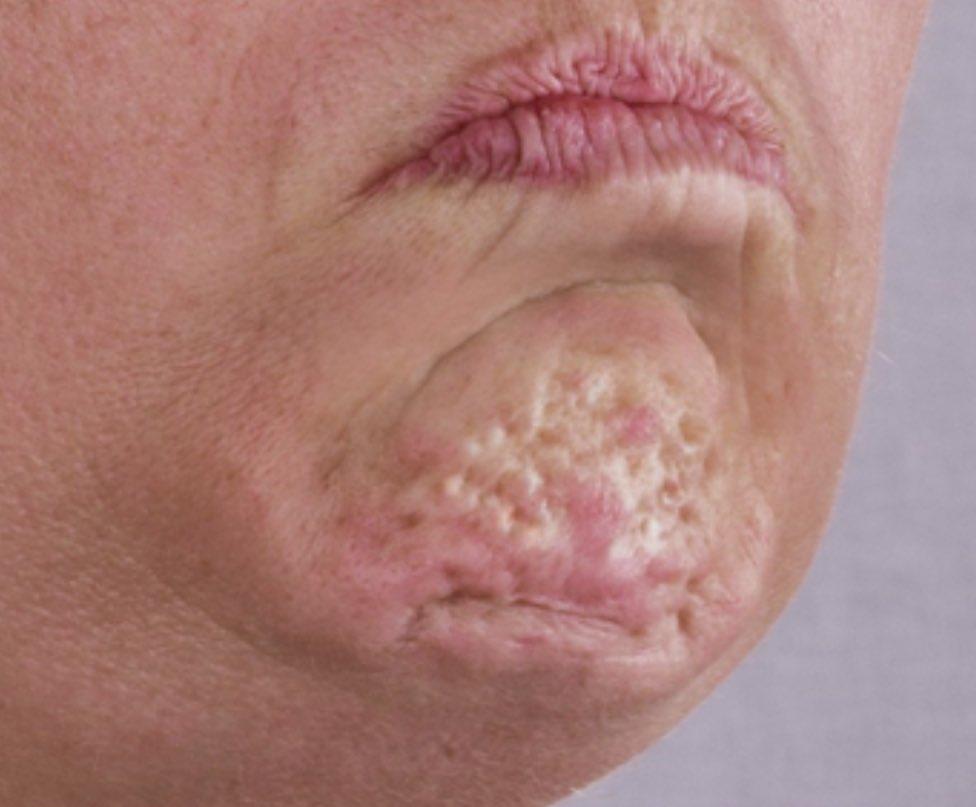 Internet właśnie odkrył czym są dziwne dołeczki w naszych brodach, gdy napinamy mięśnie