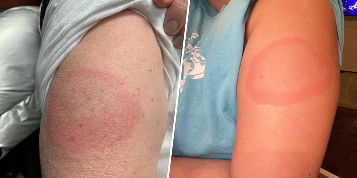 Covidowe ramię, czyli jak radzić sobie z opóźnioną reakcją alergiczną po szczepieniu