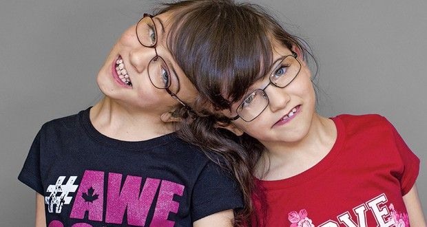 Tatiana i Krista są zrośnięte ze sobą na głowie. Bliźniaczki mogą czytać sobie w myślach