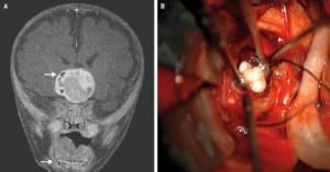 Podczas operacji guza mózgu  4-miesięcznego dziecka chirurdzy znaleźli w pełni uformowane zęby